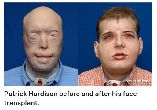 mobile home firefighter receives full face transplant
